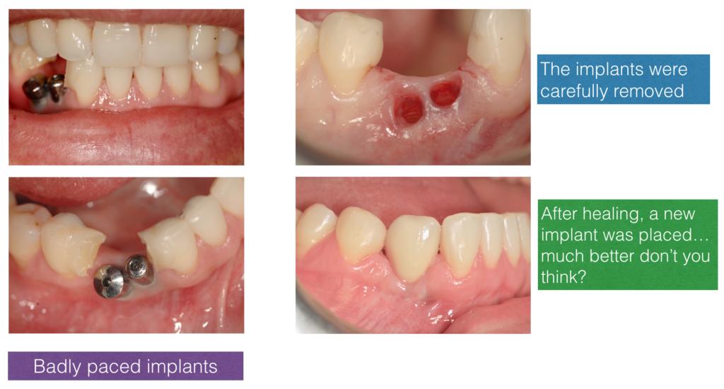 Correction of Bad Implants